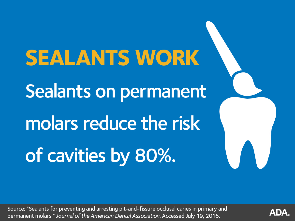 Fissure Sealants And Your Childs Teeth